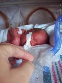Fetus's Immune System against Mother may be one reason for preterm labor