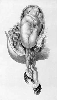 Breech presentation and vaginal delivery
